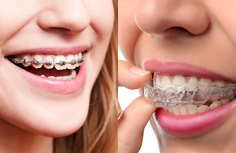 Starting The School Year With Braces Or Invisalign